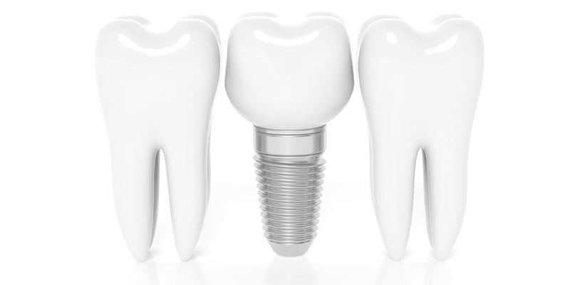 Implantes Dentales en Albacete