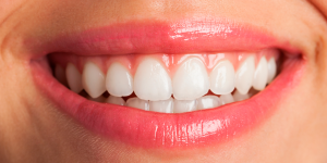 Diseño Digital de Sonrisas Albacete