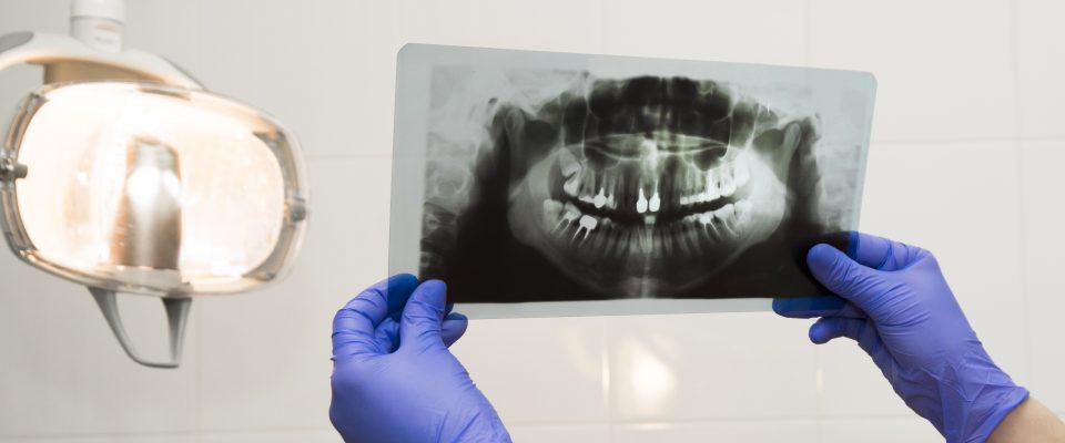 necesito-una-endodoncia-sintomas-en-que-consiste-y-que-hacer-despues